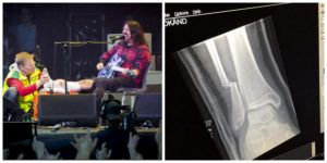150824_dave-grohl-leg-2-630x315